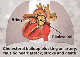 Cholesterol buildup blocking an artery, causing heart attack, stroke and death.
