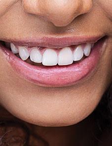 Heatlhy teeth and gum